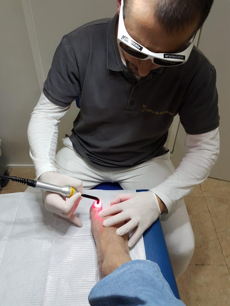 tratamiento laser en centro cllinico del pie
