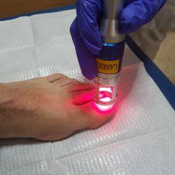 centro cllinico del pie tratamiento laser